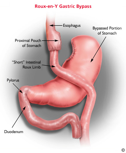 What Is The Cost Of Lap Roux En Y Gastric Bypass